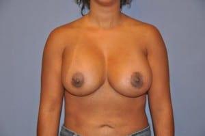 Breast Augmentation 2143