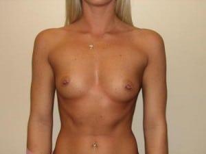 Breast Augmentation 2150