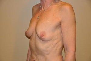 Breast Augmentation 2164