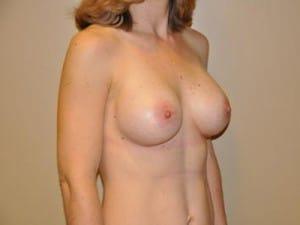 Breast Augmentation 2171