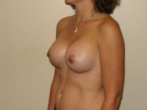 Breast Augmentation 2185
