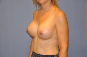 Breast Augmentation 2192