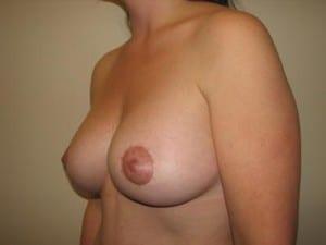 Breast Augmentation 2279