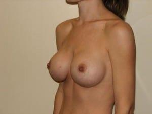 Breast Augmentation 2300