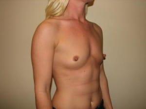 Breast Augmentation 2321