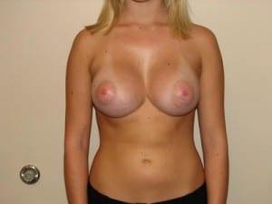 Breast Augmentation 2328
