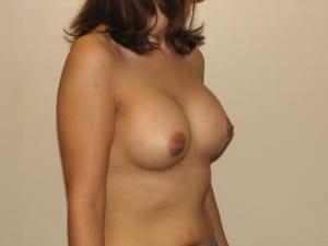 Breast Augmentation 2345