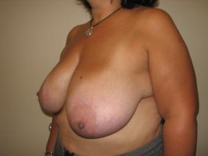Breast Reduction 2570