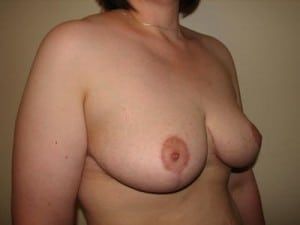 Breast Reduction 2575