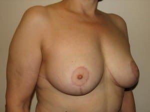 Breast Reduction 2580