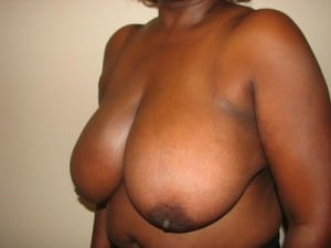 Breast Reduction 2587
