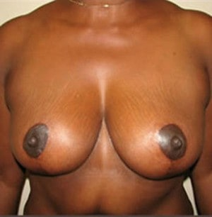Breast Reduction 2604