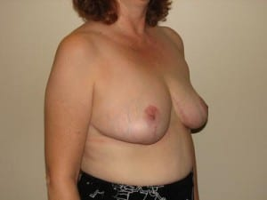 Breast Reduction 2609