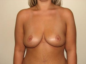 Breast Reduction 2616