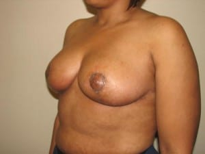 Breast Reduction 2623