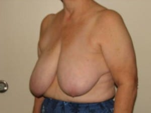 Breast Reduction 2637