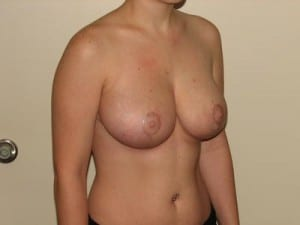 Breast Reduction 2644