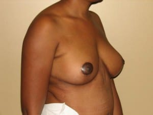 Breast Reduction 2651