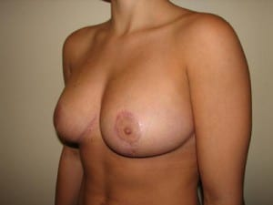 Breast Reduction 2657