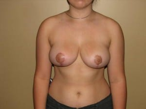 Breast Reduction 2665