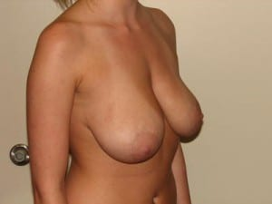 Breast Reduction 2672