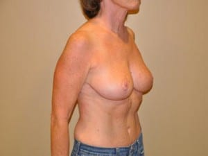 Breast Reduction 2679
