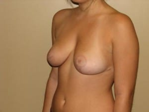 Breast Reduction 2686