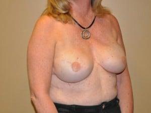 Breast Reconstruction 2369