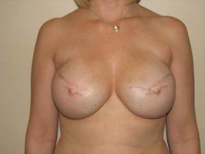 Breast Reconstruction 2376