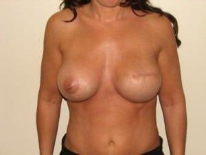 Breast Reconstruction 2390