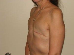 Breast Reconstruction 2393