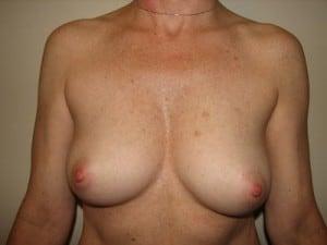 Breast Reconstruction 2400