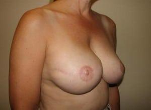 Breast Reconstruction 2403