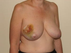 Breast Reconstruction 2408