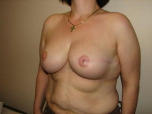 Breast Reconstruction 2418