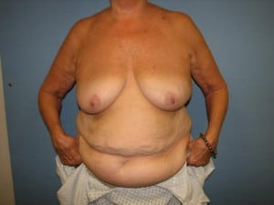 Breast Reconstruction 2437