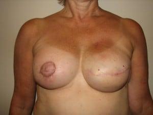 Breast Reconstruction 2440