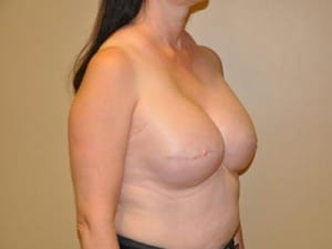 Breast Reconstruction 2447