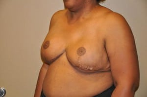 Breast Reconstruction 2454
