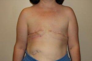 Breast Reconstruction 2461
