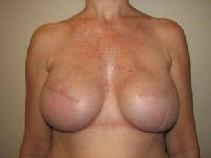 Breast Reconstruction 2468