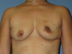 Breast Reconstruction 2475