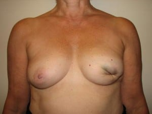 Breast Reconstruction 2485