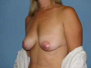 Breast Reconstruction 2508