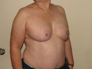 Breast Reconstruction 2494
