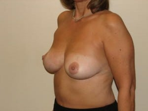 Breast Reconstruction 2501