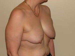 Breast Reconstruction 2516