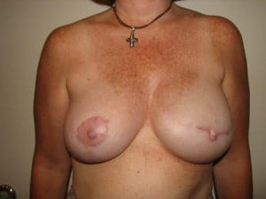 Breast Reconstruction 2523