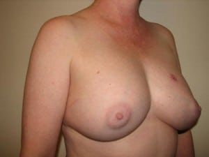 Breast Reconstruction 2528