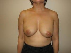 Breast Reconstruction 2533